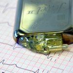 Digitale Medizin: Wenn der Hacker den Herzschrittmacher knackt