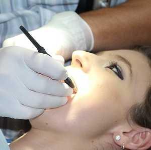 Professionelle Zahnreinigung: Welche Leistungen die Krankenkasse übernimmt